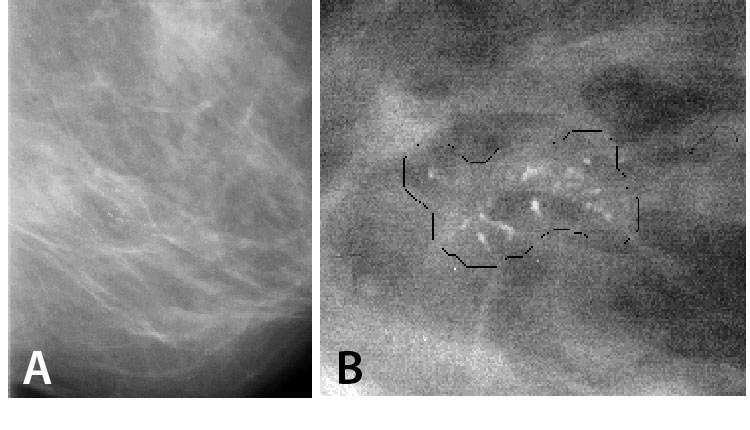 (a) A mammogram showing a cluster of microcalcifications and (b) computer-estimated margin around a cluster of microcalcifications.